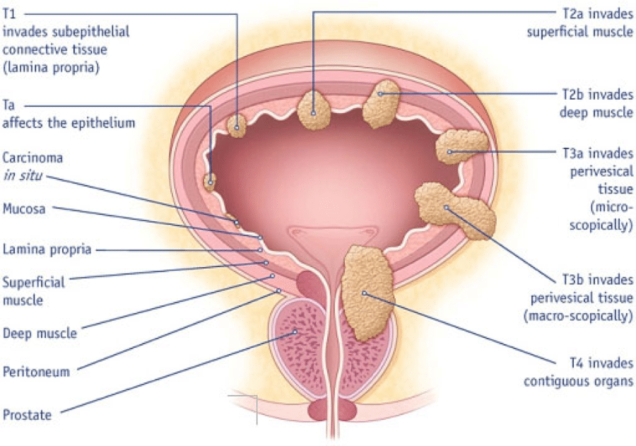Bladder Cancer Diagram
